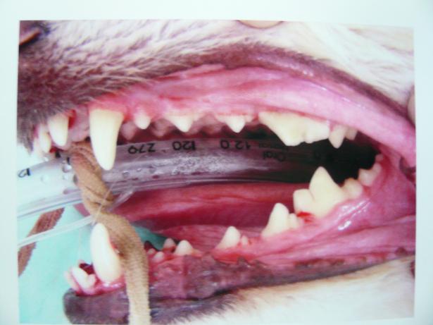 5.23歯の修復治療3